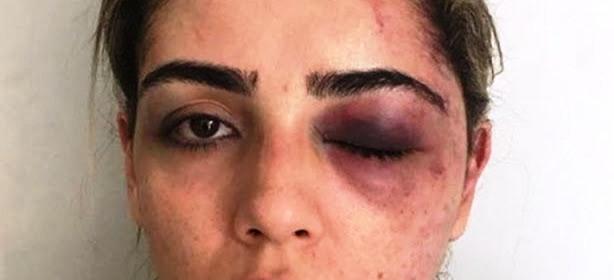Justiça decreta prisão preventiva de agressor de advogada